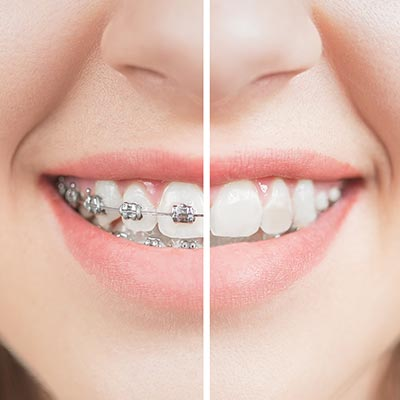 orthodontics before and after braces