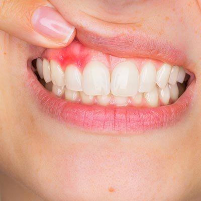 gum disease swollen red gums